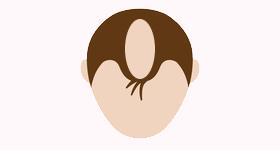 女子男性型脱毛
